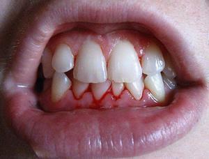 dra ut rotfylld tand infektion